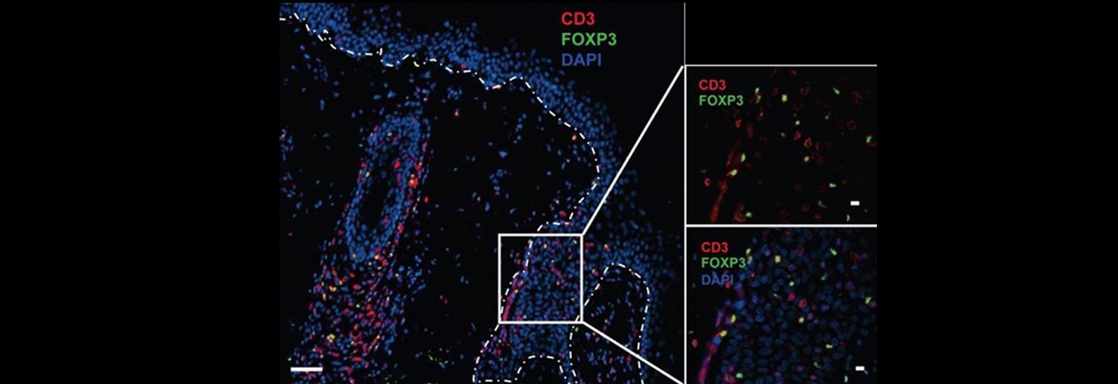Aquiderm cellule de transfert ADERA CRO infllammation dermatologie cancer